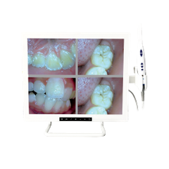 Intraoral Camera with TFT Screen