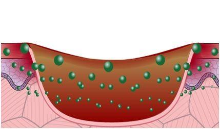 Module 9 : Infection Management