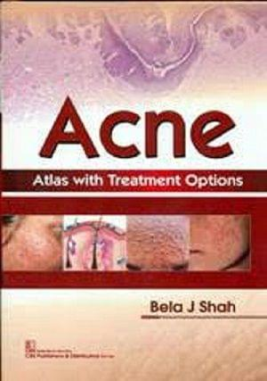 ACNE Atlas with Treatment Options 2018 By Bela J Shah