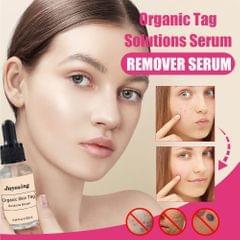 20ML Face Black Spots/ Nevus/ Moles/ Freckles Organic