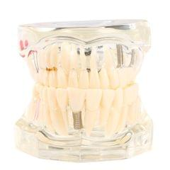 Transparent Dental Implantation Disease Teeth Model Teaching